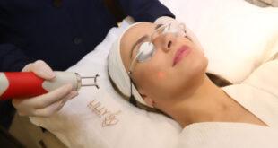 Clareamento Facial feito na clínica Lilly Estética